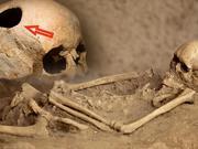 没有麻醉药:为什么古人要打开活人的头盖骨?