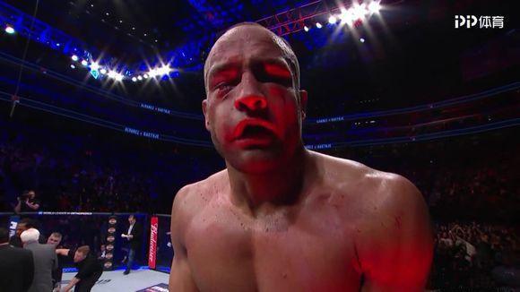 脸肿的亲妈都认不出来!UFC218教科书式站撸,一回合打出400拳。