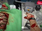 【吊德斯&小熙】 模拟外科手术 双人模式 从未见过如此不协调的双手