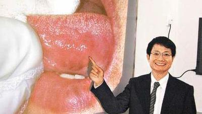 口腔溃疡能导致口腔癌 杜绝抽烟喝酒嚼槟郎